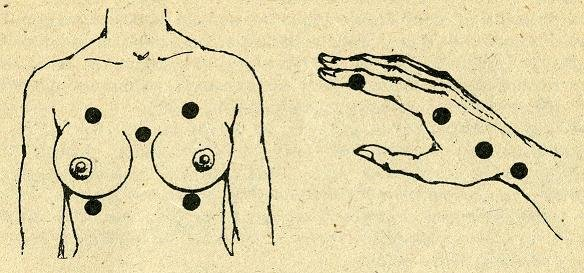 Увеличение груди (маммопластика) в Москве, фото до и после - клиника Сан Лазар