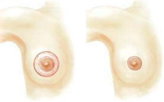 увеличить грудь методы